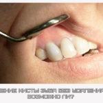 Лечение кисты зуба без удаления — возможно ли?